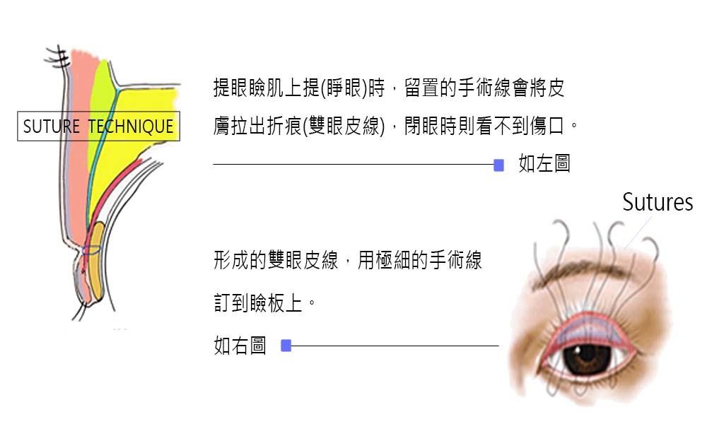 首璽格爾診所-服務項目-整形-雙眼皮-05