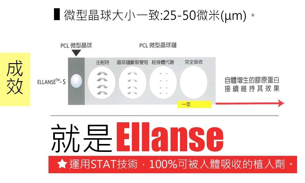首璽格爾-服務項目-微整形-ellanse7