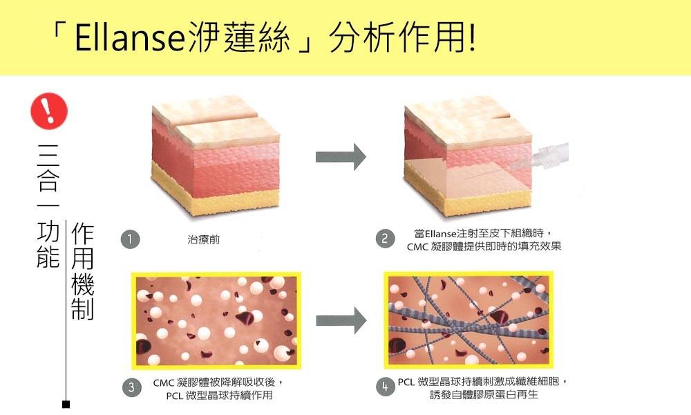 首璽格爾-服務項目-微整形-ellanse8