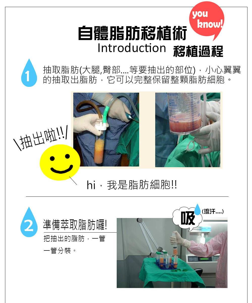 首璽格爾診所-服務項目-整形-自體脂肪移植臉部-10504268