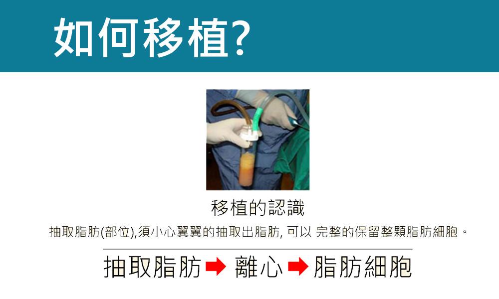 首璽格爾-服務項目-整形-自體脂肪移植-臉部5