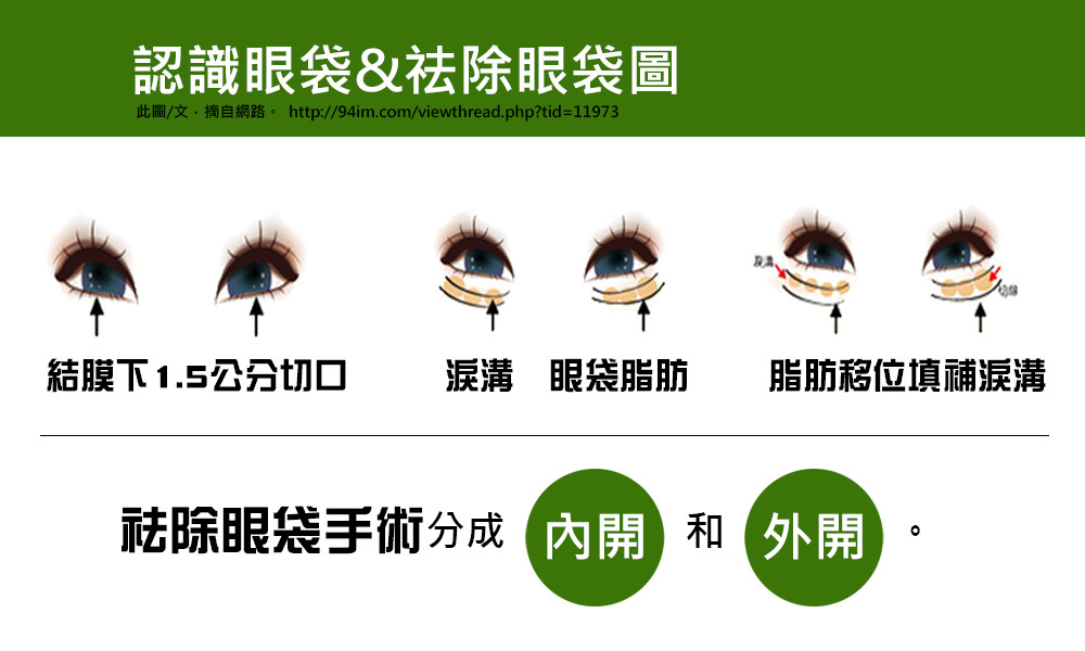 首璽格爾-服務項目-眼袋手術2