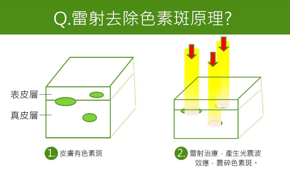 首璽格爾-服務項目-雷射光療-淨膚課程