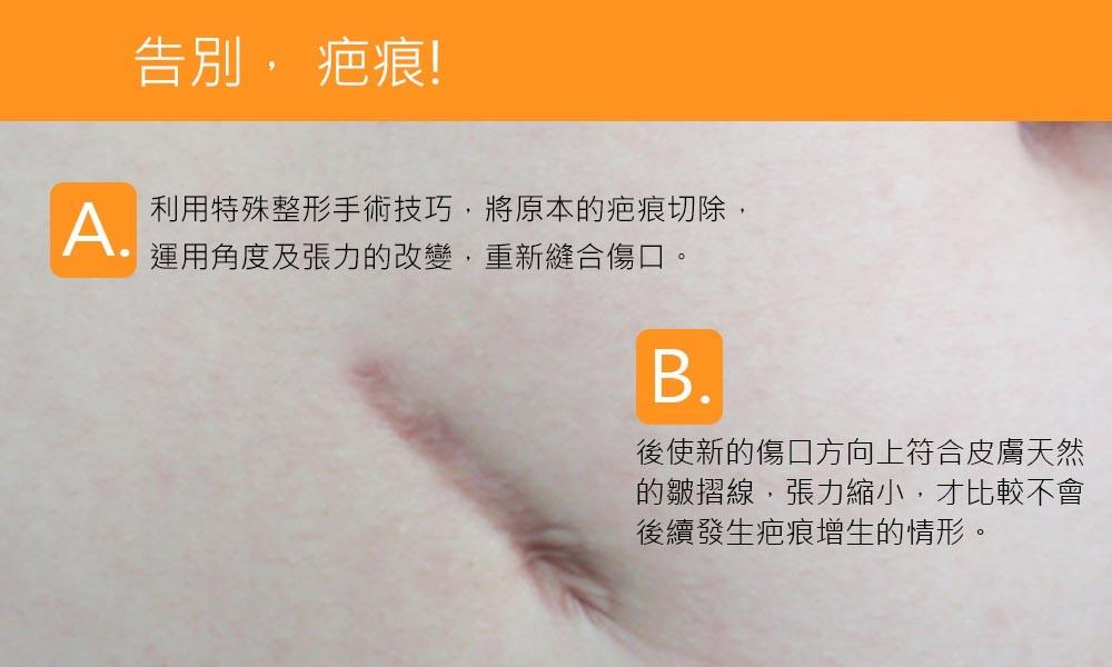 首璽格爾-服務項目-整形-修疤6