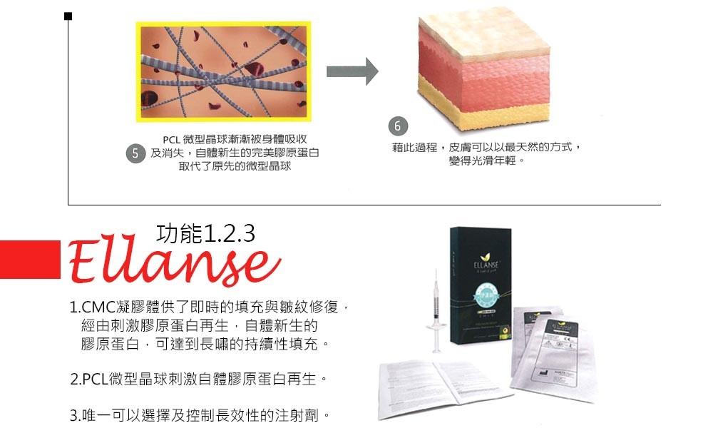 首璽格爾-服務項目-微整形-ellanse9